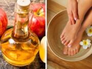 vinagre de maçã nos pés